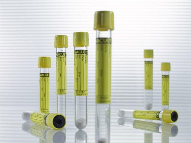 Urine Sample Tubes